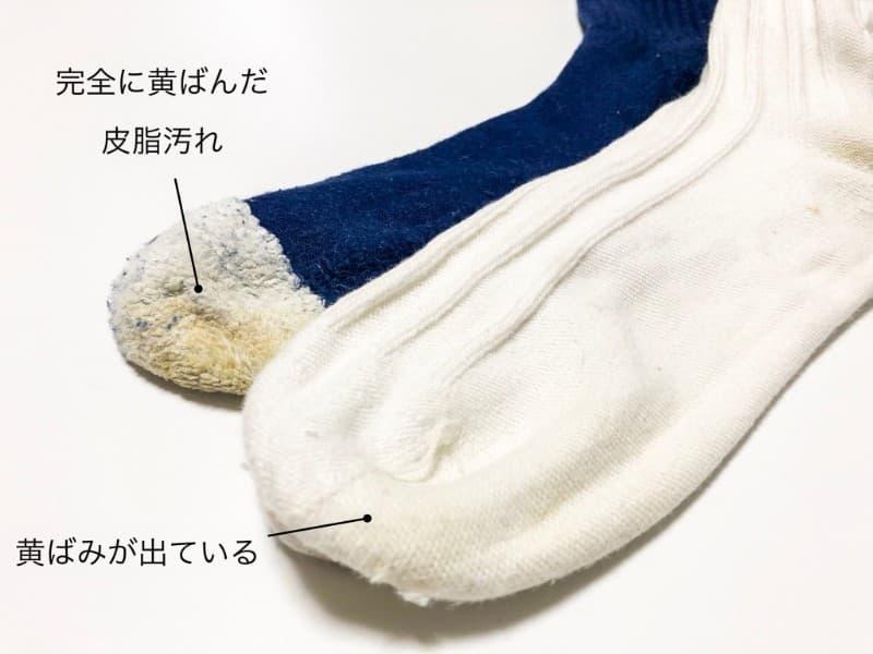 皮脂汚れが溜まりカチカチになった靴下